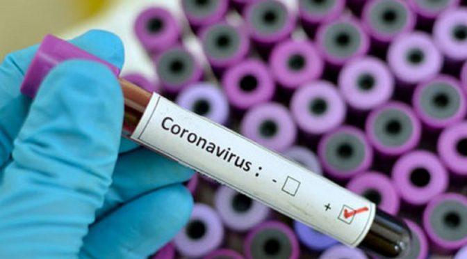 """На Черкащині +1 пацієнт із діагнозом """"коронавірус"""" – 15-річна дівчина"""