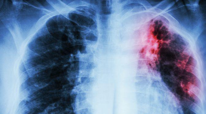 Сьогодні Всесвітній день боротьби з туберкульозом. Щорічно захворюють 10 000 000 людей. 1 000 000 вмирає