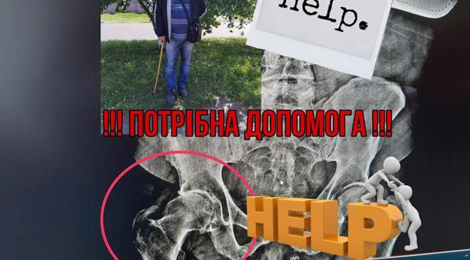 Родина Костенюків із Черкас потребує допомоги на операцію із протезування тазостегнового суглоба