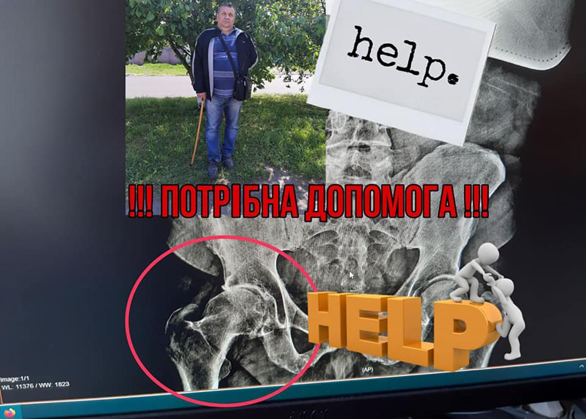 Голова сім'ї - 56-річний Костенюк Сергій Григорович - нещодавно переніс онкозахворювання, котре сильно послабило його організм. На фоні цього загострилась інша проблема: деструкція тазостегнового суглоба, викликана надмірним навантаженням на ноги.